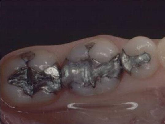overhead photo of teeth with silver fillings