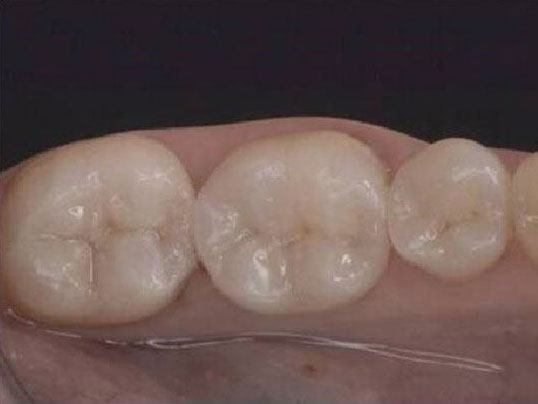 overhead photo of teeth in the gums
