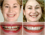 Before and after bonding smile