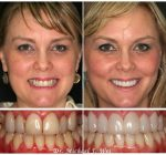 Woman's smile before and after treatment