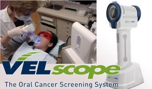 picture of the Velscope cancer sceening tool
