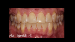Full mouth root coverage