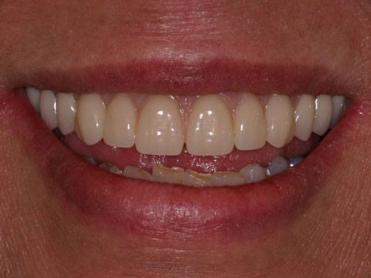 close up of woman's smile with lightly stained teeth