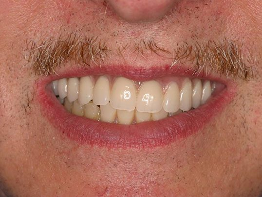 close up of man's smile with slanted teeth and patchy mustache