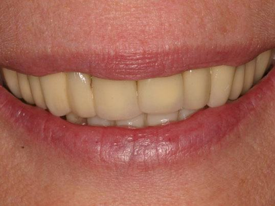 close up of woman's smile with yellowed teeth