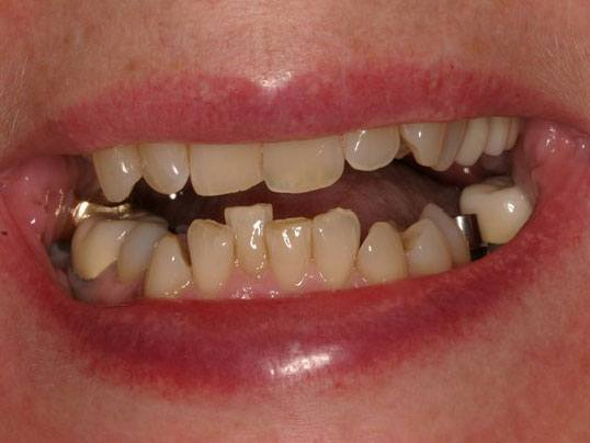 close up of woman's smile with very crooked and missing teeth