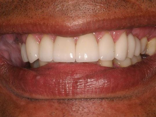 close up of man's smile with lightly stained teeth