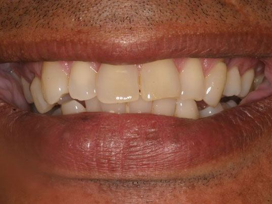 close up of man's smile with crooked teeth