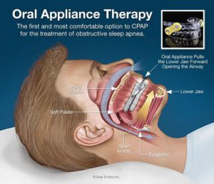 diagram depicting oral appliance therapy