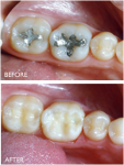 dental onlays before and after comparison photos