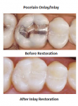 Before and after restoration of molars with porcelain inlays