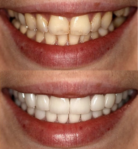 before and after smiles with the before smile on top and the after smile on bottom