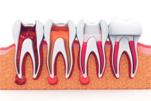 root canal treatment arlington va
