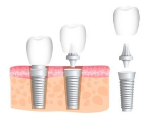 dental implants arlington va